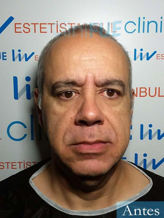 Emiliano 57 Las palmas injerto de pelo dia operacion