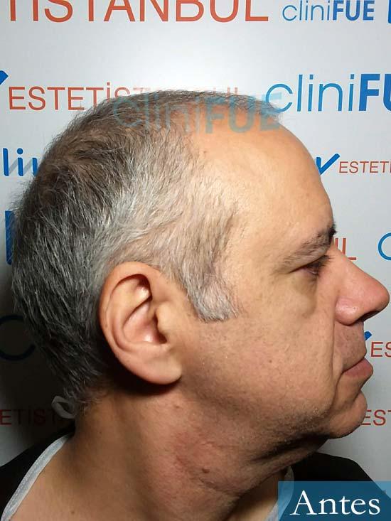 Emiliano 57 Las palmas injerto de pelo dia operacion 3