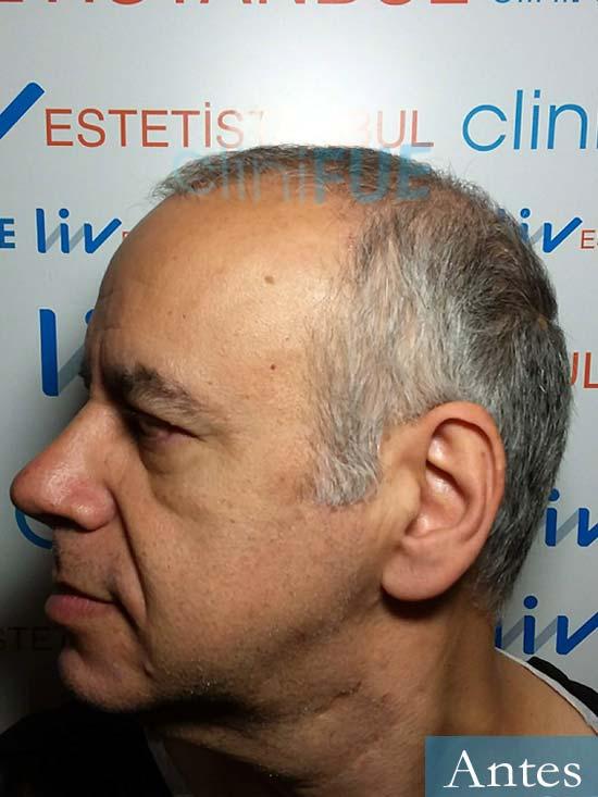 Emiliano 57 Las palmas injerto de pelo dia operacion 4
