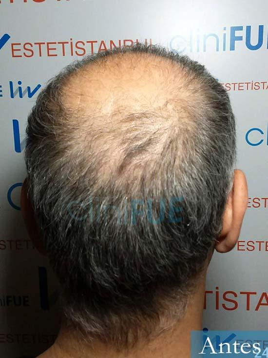 Emiliano 57 Las palmas injerto de pelo dia operacion 5