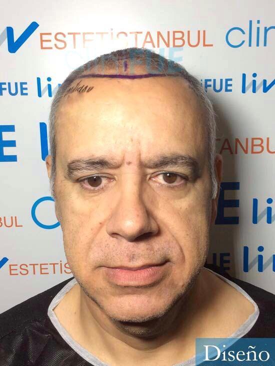 Emiliano 57 Las palmas injerto de pelo dia operacion diseno