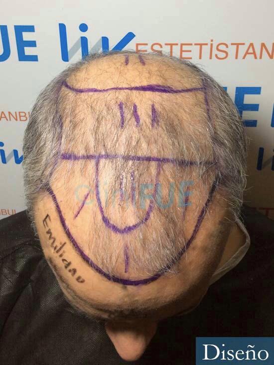 Emiliano 57 Las palmas injerto de pelo dia operacion diseno 2