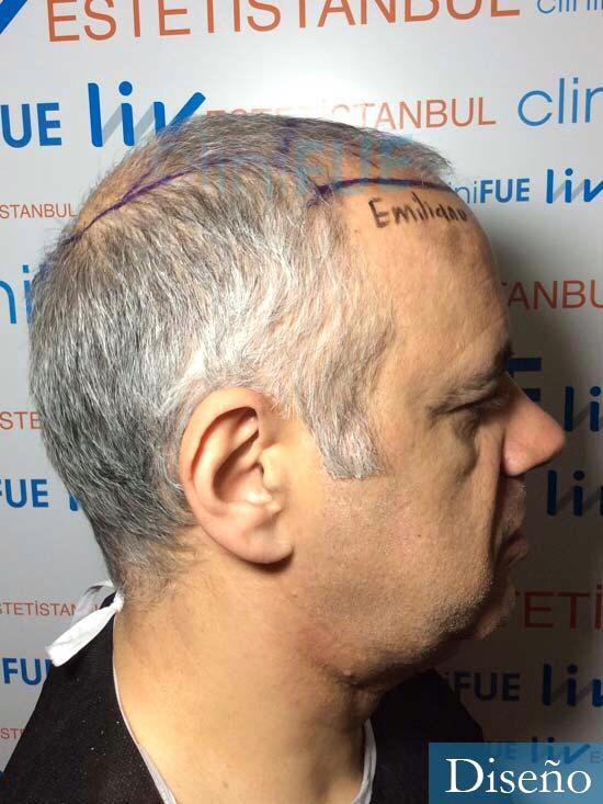 Emiliano 57 Las palmas injerto de pelo dia operacion diseno 3