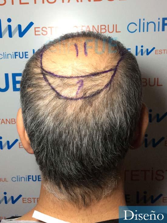 Emiliano 57 Las palmas injerto de pelo dia operacion diseno 4
