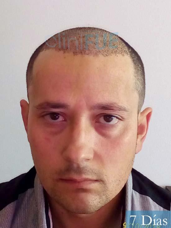 Enrique 36 Valladolid injerto de pelo dia operacion 1