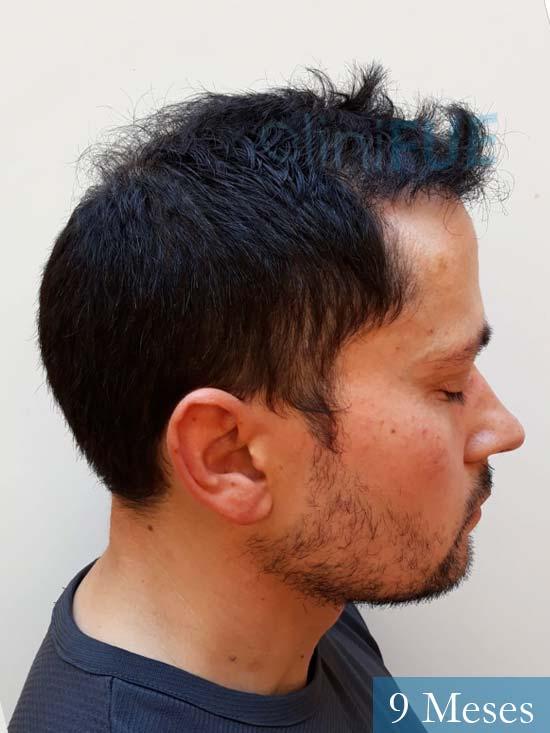 Enrique 36 Valladolid injerto de pelo 9 meses 3