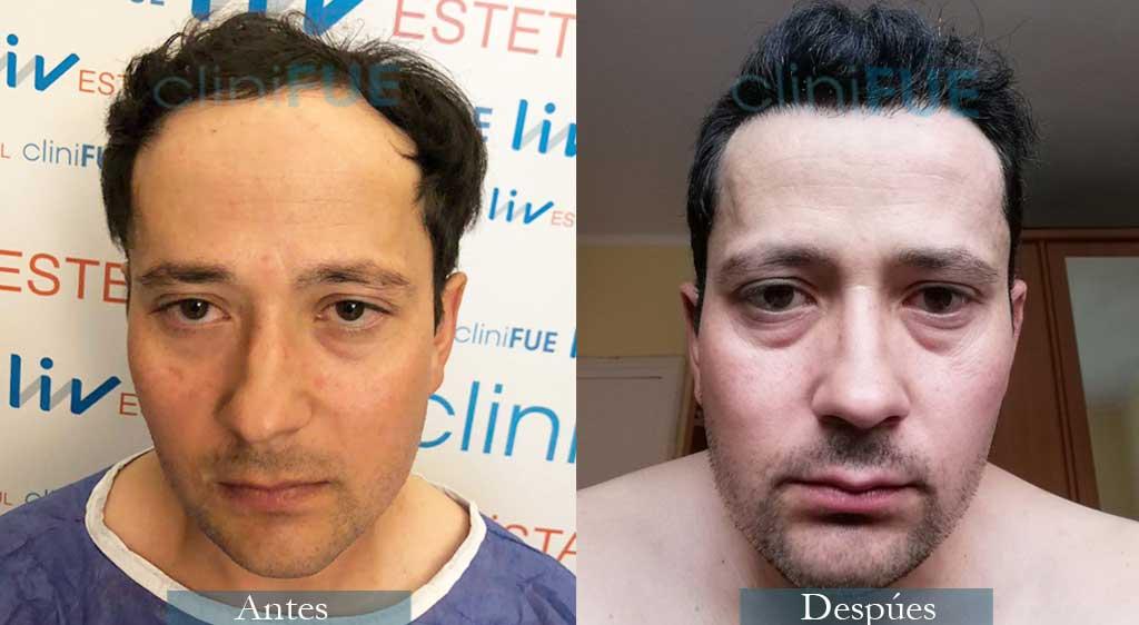 Enrique 36 años 3300 UF injerto capilar