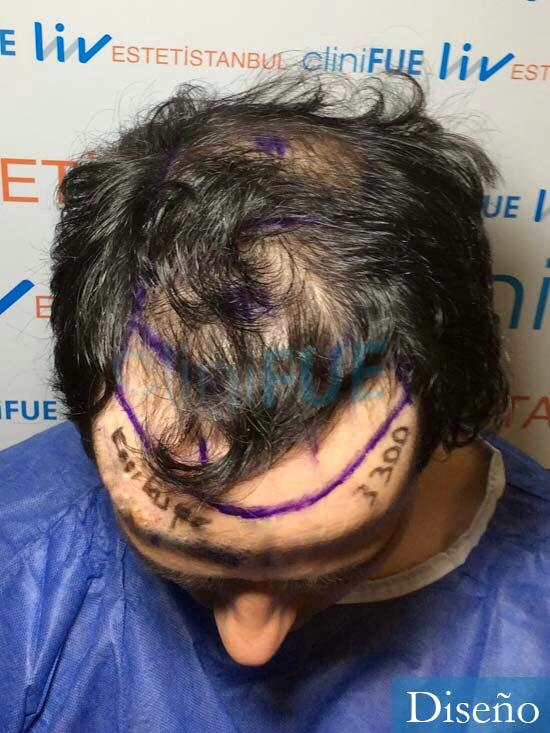 Enrique 36 Valladolid injerto de pelo dia operacion diseno 2