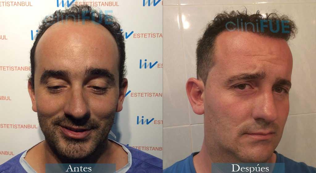 Juan Jose 34 Palencia injerto de pelo 9 meses 3