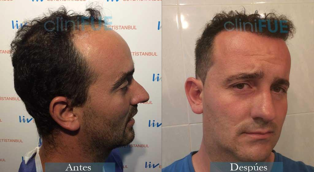 Juan Jose 34 Palencia injerto de pelo 9 meses 4