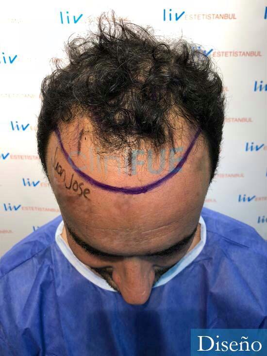 Juan Jose 34 Palencia injerto de pelo dia operacion diseno