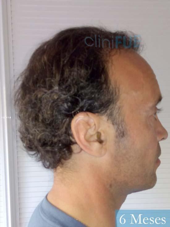 Rafael 47 Madrid injerto de pelo 6 meses 4
