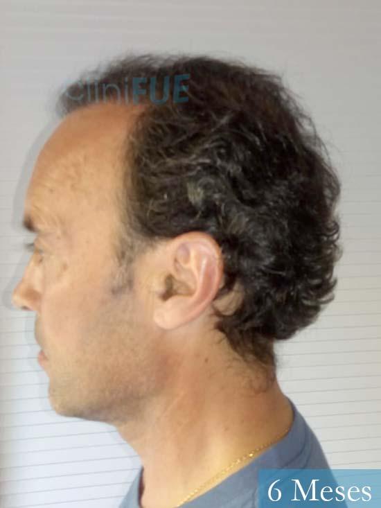 Emiliano 57 Las palmas injerto de pelo 6 meses 4