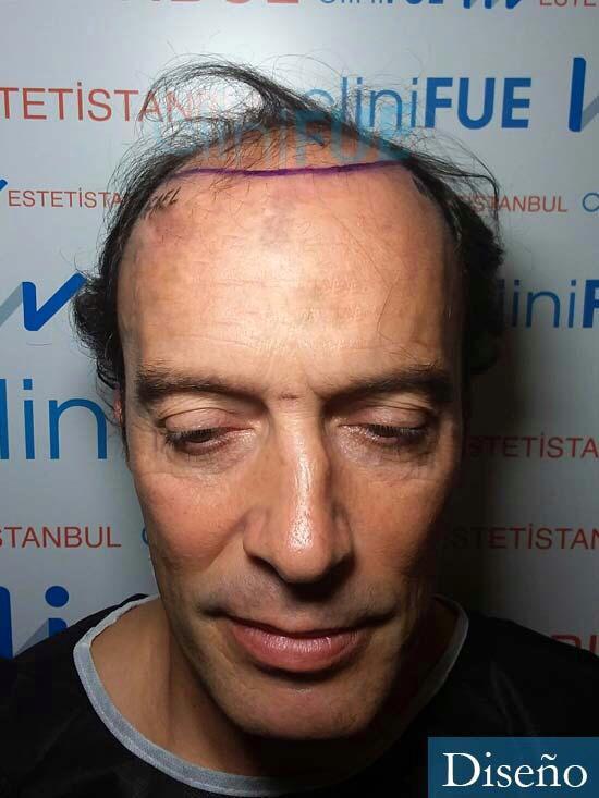 Rafael 47 Madrid injerto de pelo dia operacion diseno 1