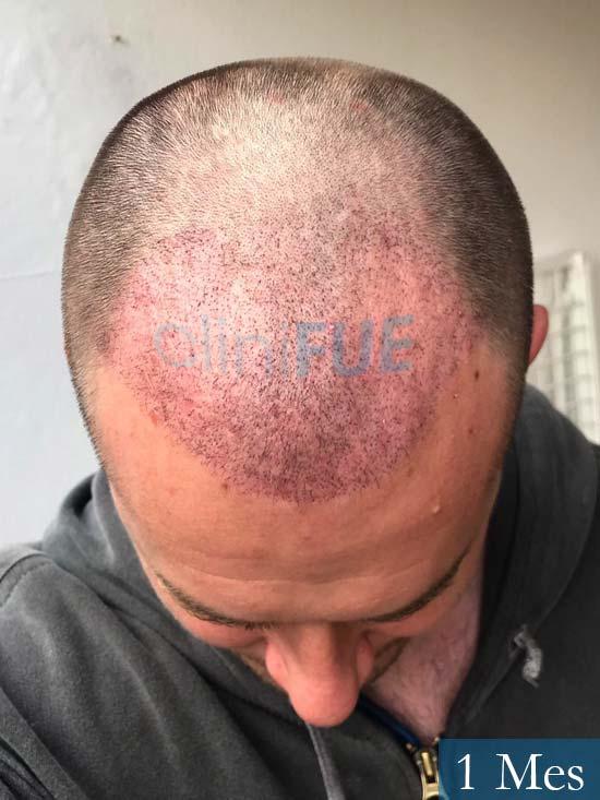 Marc-32-Islas Baleares-trasplante-capilar-turquia-15 dias-2