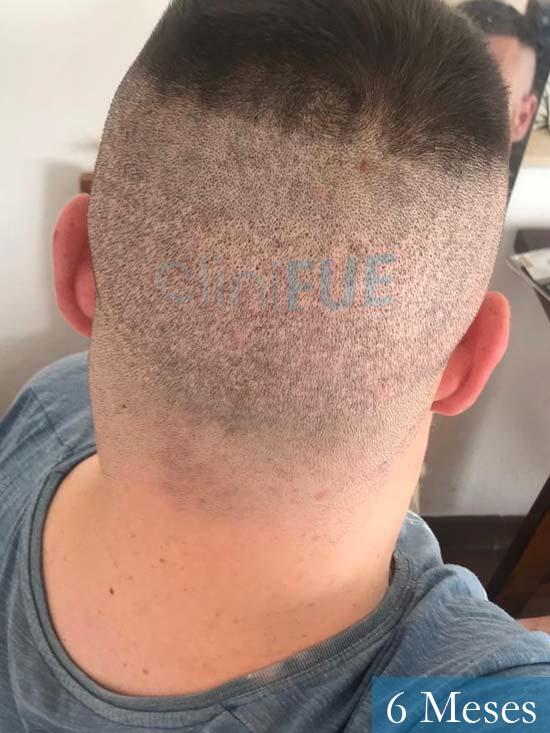 Marc-32-Islas Baleares-trasplante-capilar-turquia 6 meses-6
