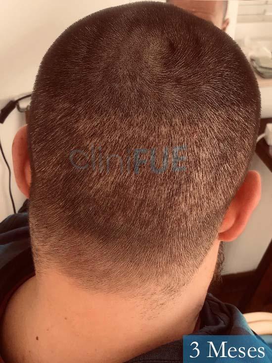Marc-32-Islas Baleares-trasplante-capilar-turquia-3 meses-6