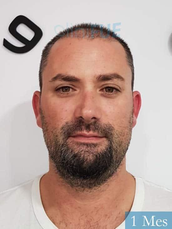 Carlos 38 anos trasplante turquia 1 mes