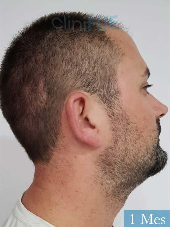 Carlos 38 anos trasplante turquia 1 mes 3