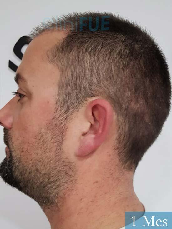 Carlos 38 anos trasplante turquia 1 mes 4