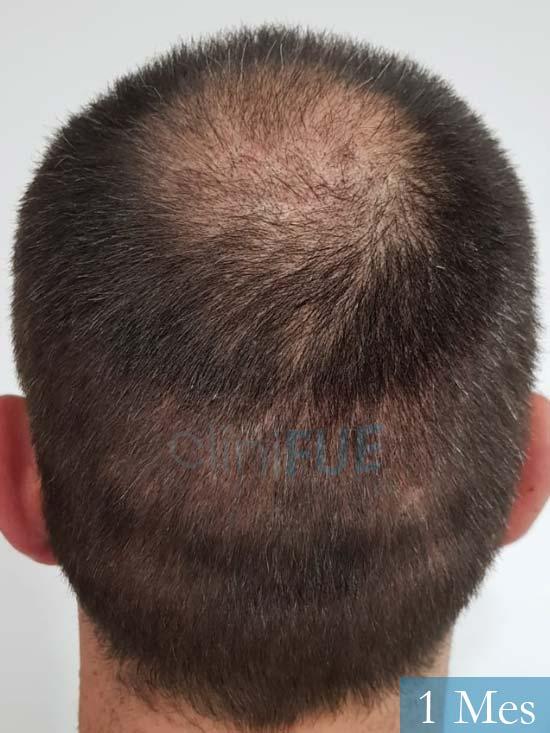 Carlos 38 anos trasplante turquia 1 mes 5