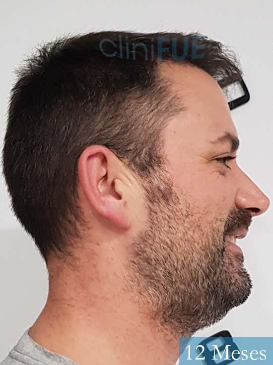Carlos 38 anos trasplante turquia 12 meses 2
