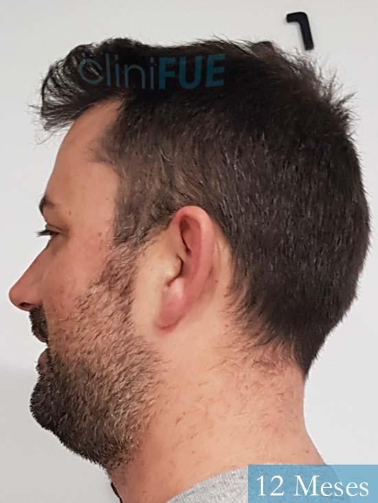 Carlos 38 anos trasplante turquia 12 meses 3
