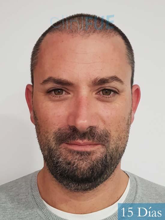 Carlos 38 anos trasplante turquia 14 dias