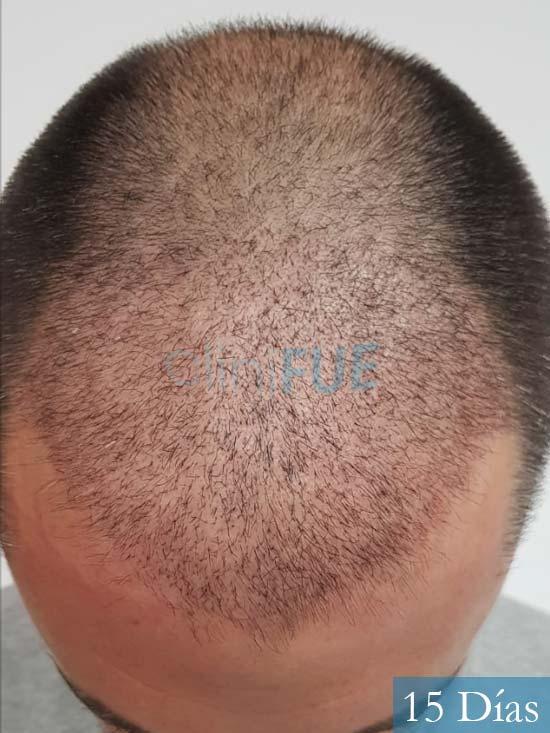 Carlos 38 anos trasplante turquia 14 dias 2