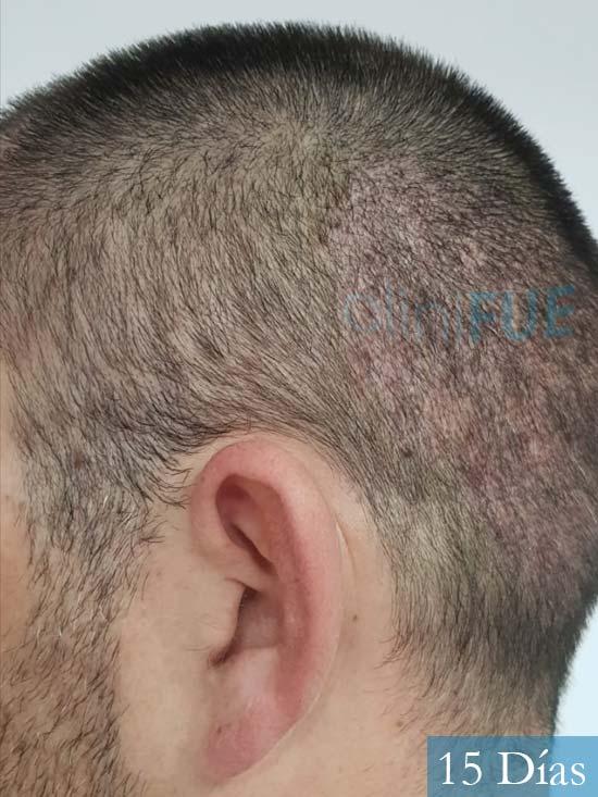 Carlos 38 anos trasplante turquia 14 dias 4