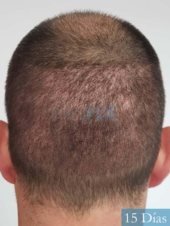 Carlos 38 anos trasplante turquia 14 dias 5