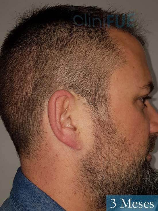 Carlos 38 anos trasplante turquia 3 meses 4