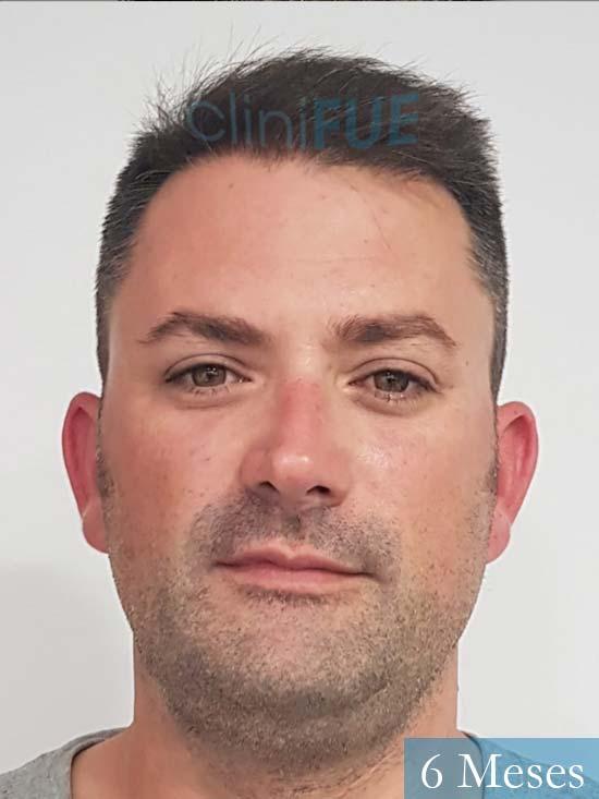 Carlos 38 anos trasplante turquia 6 meses 1