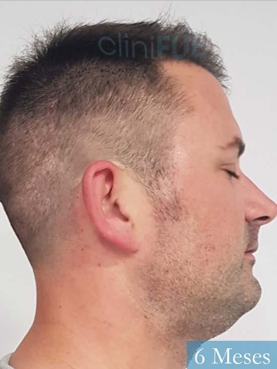 Carlos 38 anos trasplante turquia 6 meses 3