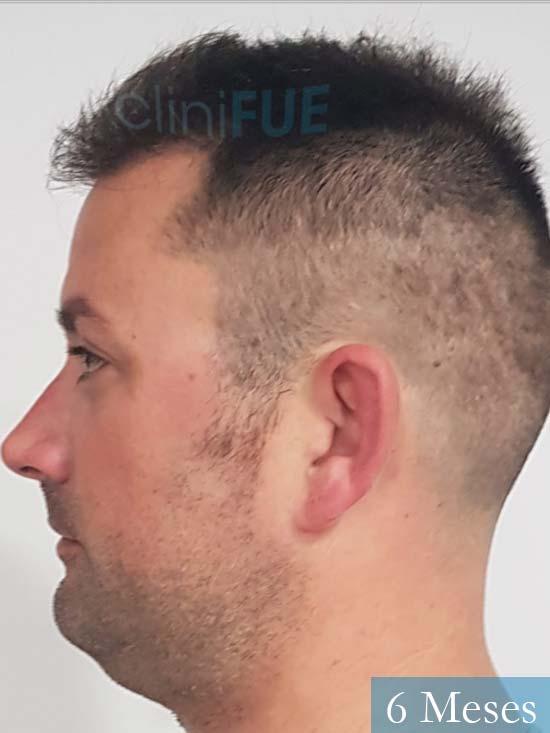 Carlos 38 anos trasplante turquia 6 meses 4