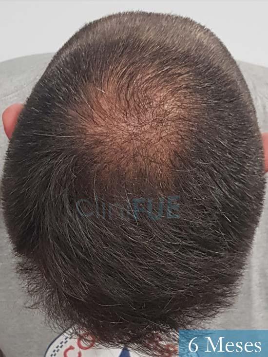 Carlos-38-anos-trasplante-turquia-6 meses-1