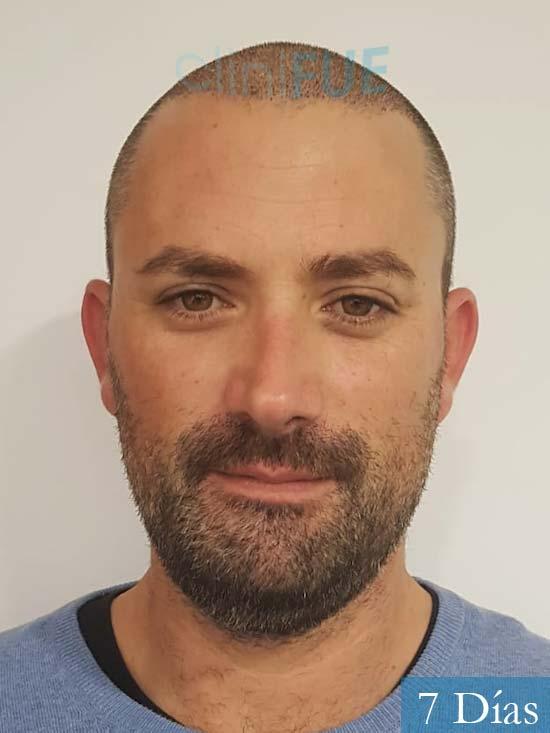 Carlos 38 anos trasplante turquia 7 dias