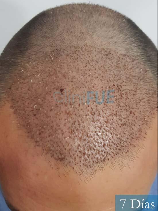 Carlos 38 anos trasplante turquia 7 dias 2
