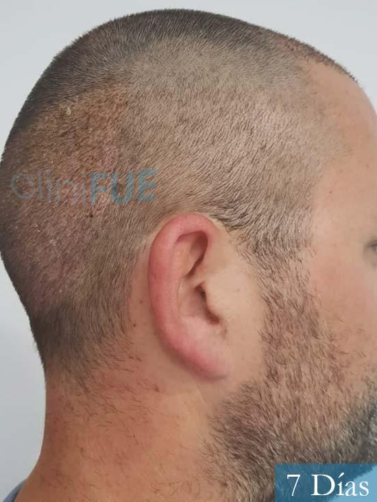 Carlos 38 anos trasplante turquia 7 dias 3