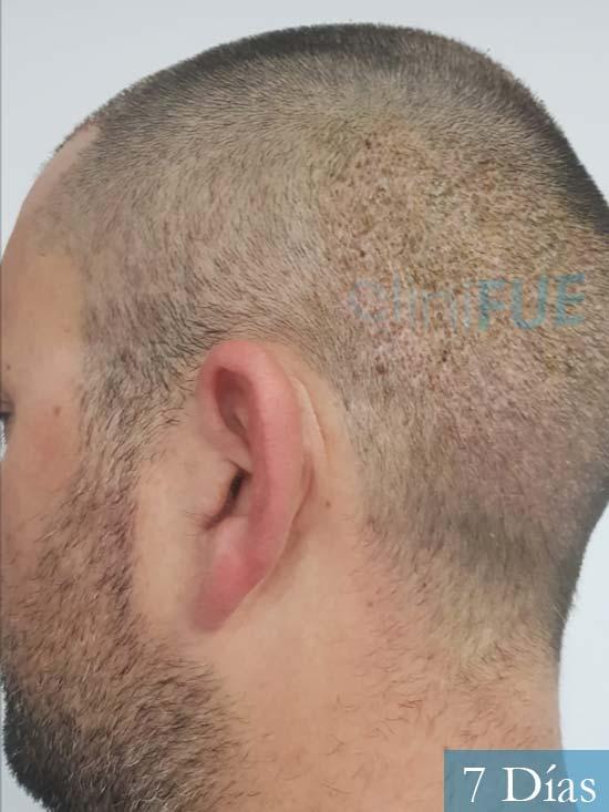 Carlos 38 anos trasplante turquia 7 dias 5