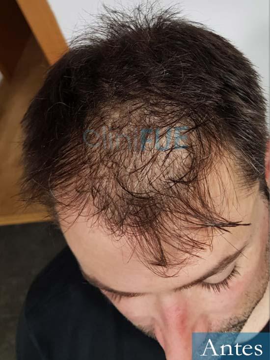 Carlos 38 anos trasplante turquia antes