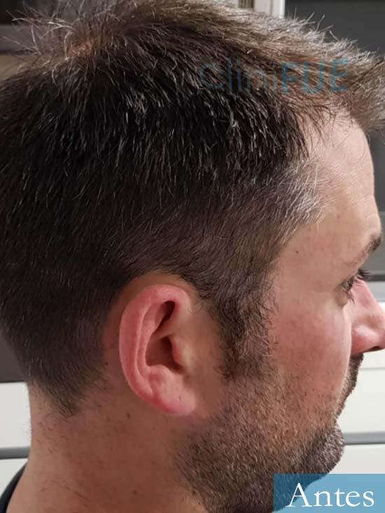 Carlos 38 anos trasplante turquia antes 3