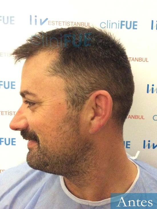 Carlos 38 anos trasplante turquia antes 4