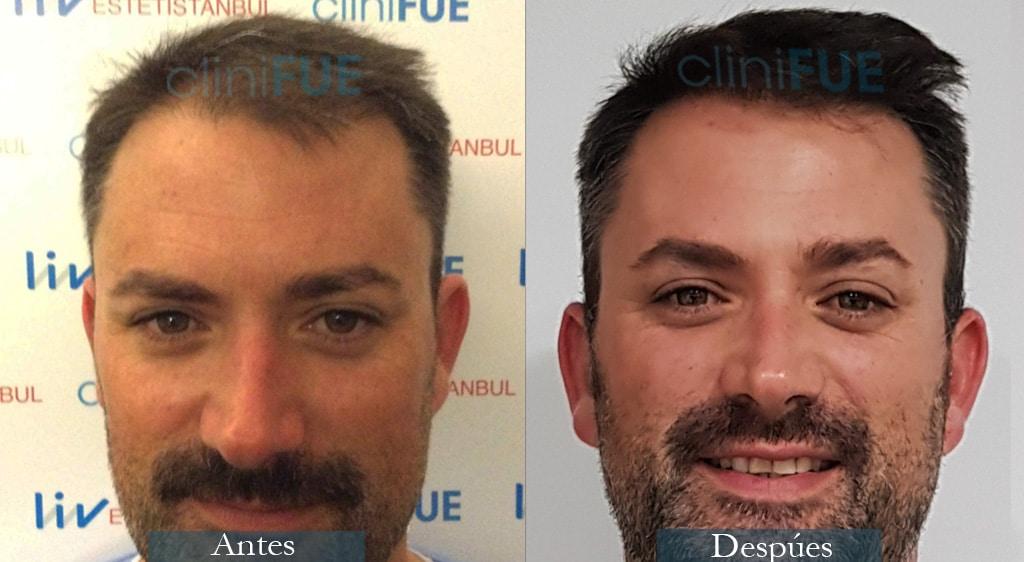 Injerto capilar de Carlos 38 Años de Barcelona con cliniFUE