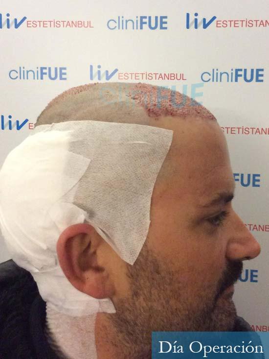 Carlos 38 anos trasplante turquia dia operacion 3