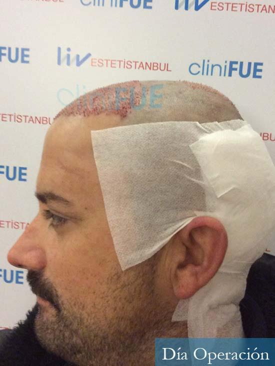 Carlos 38 anos trasplante turquia dia operacion 5