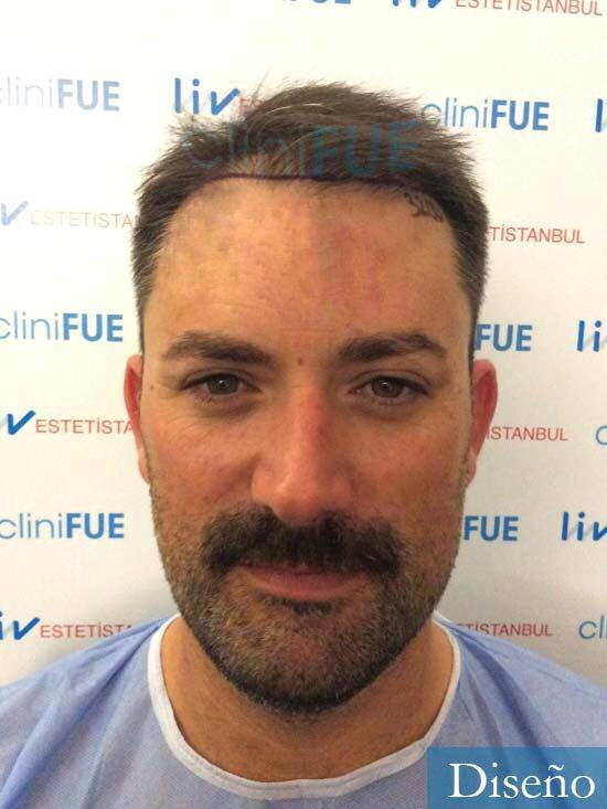 Carlos 38 anos trasplante turquia antes 1