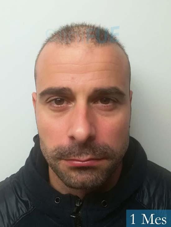 Gerardo-34-Barcelona-trasplante-capilar- 1 mes