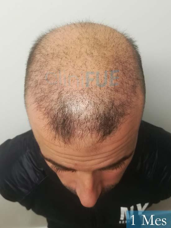 Gerardo-34-Barcelona-trasplante-capilar- 1 mes 2