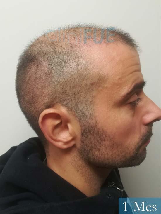 Gerardo-34-Barcelona-trasplante-capilar- 1 mes 3